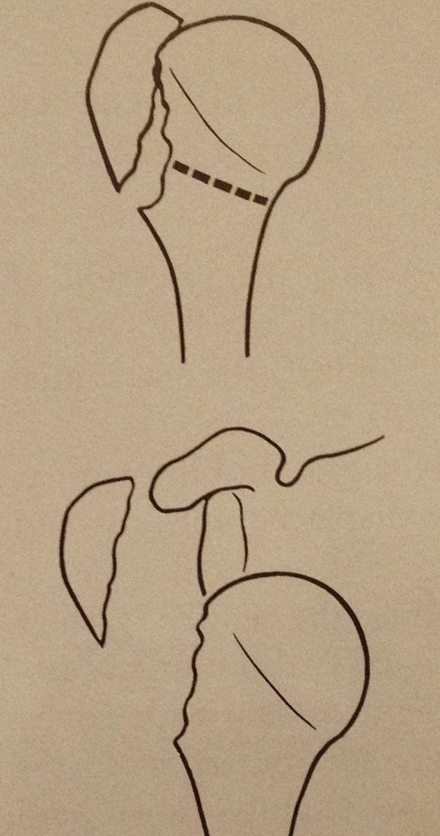Fractures de l'Humérus