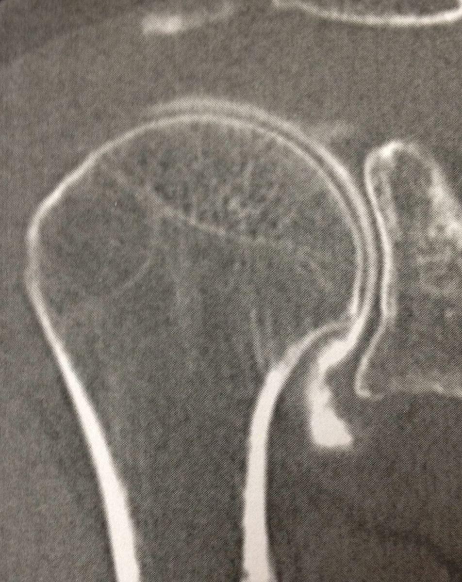 Examens de l'épaule : arthro-scanner