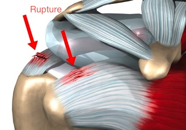 Rupture de la coiffe des rotateurs