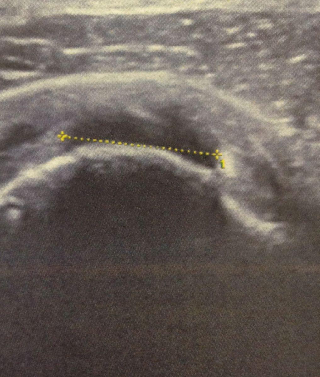 Examens de l'épaule : échographie