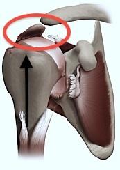 Omarthrose et Prothèse Inversée