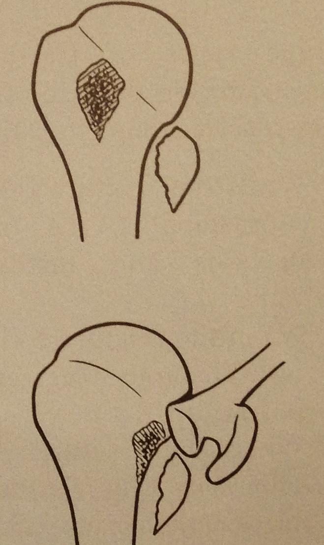 Fractures de l'Humérus proximal