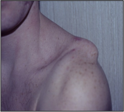 Disjonctions acromio-claviculaires