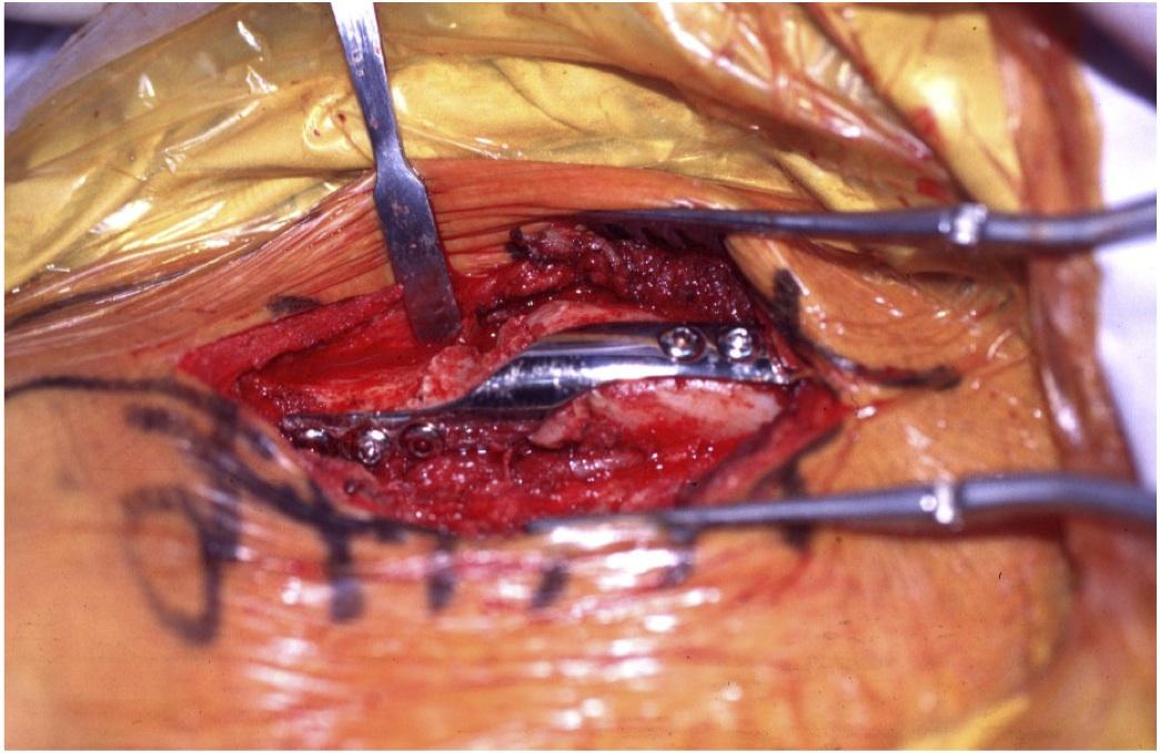 chirurgie Fracture de la clavicule