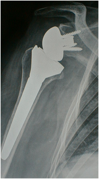 Fractures du col chirurgical