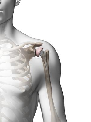 Prothèse Anatomique