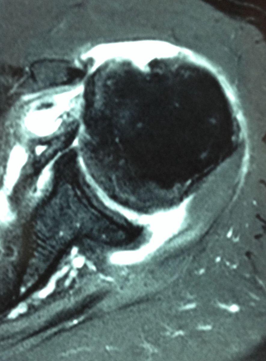 rupture du tendon sub-scapulaire